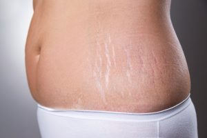 Remove-Stretch-Marks-After-Pregnancy