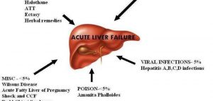 Main-Causes-Of-Liver-Damage-181237011506699