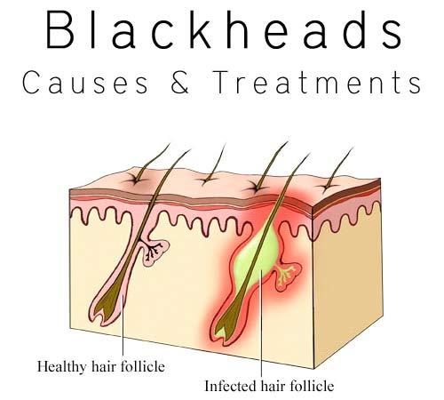 Tips-To-Remove-Blackhead-010104134784636