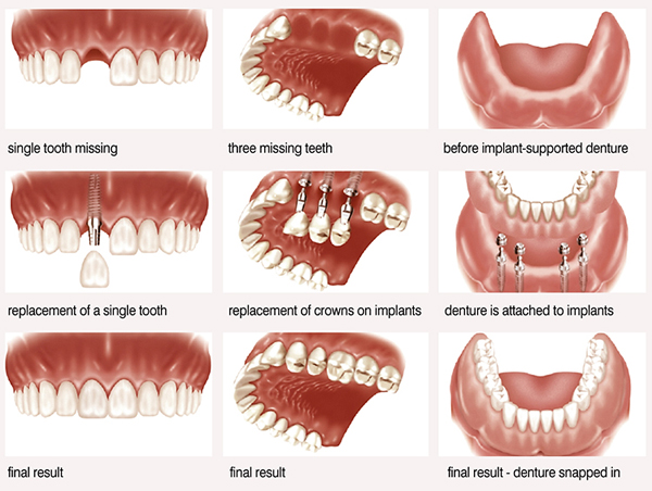 best-dental-implants