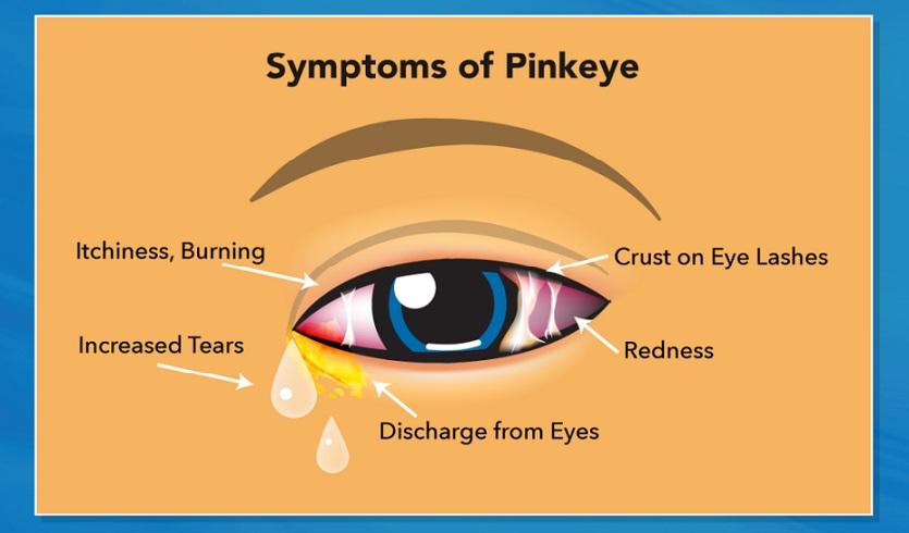 PINK-EYE-2