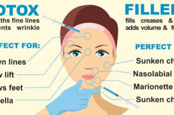 Botox-treatment-and-fillers